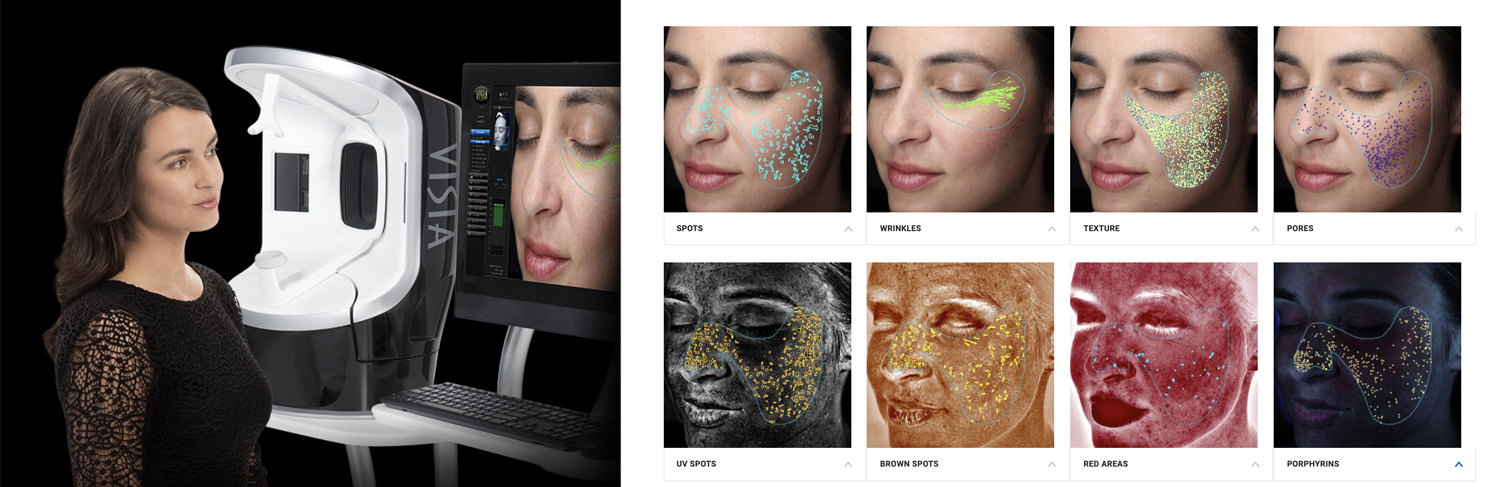 New VISIA Complexion Analysis System