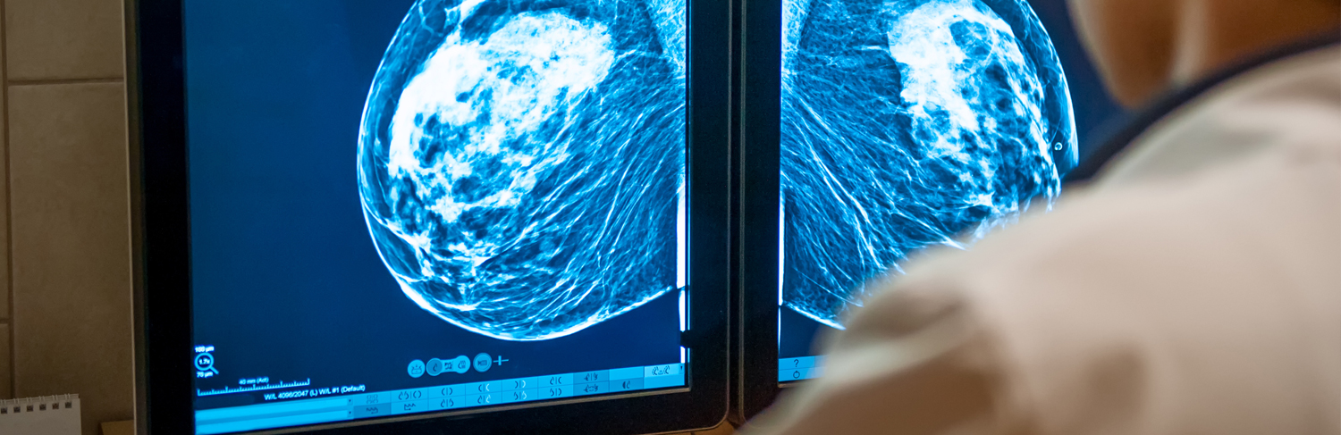 Erasing the Scars of Breast Cancer