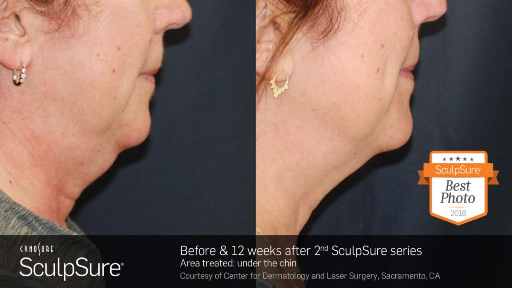 Before and after results for SculpSure