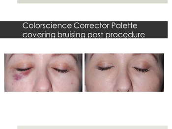 Before and after Colorscience Corrector Palette results