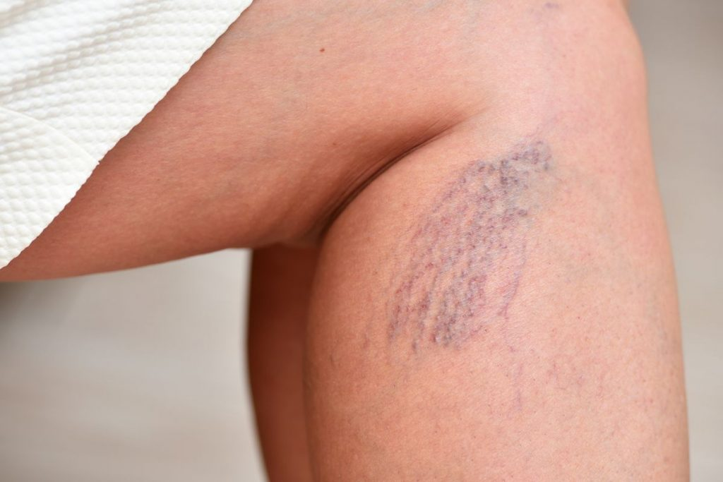 Spider veins and varicose veins on a person's leg