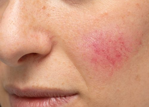 Rosacea on a woman's cheek