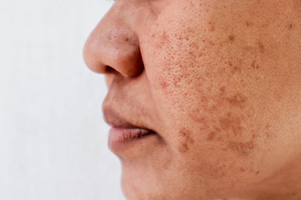 Sun damage on a woman's cheek