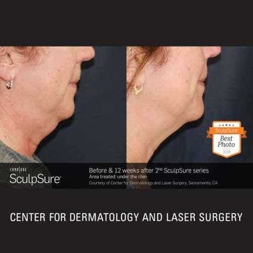 SculpSure Before and After Photo Winner