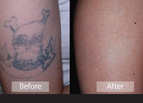 Before and after tattoo removal photos