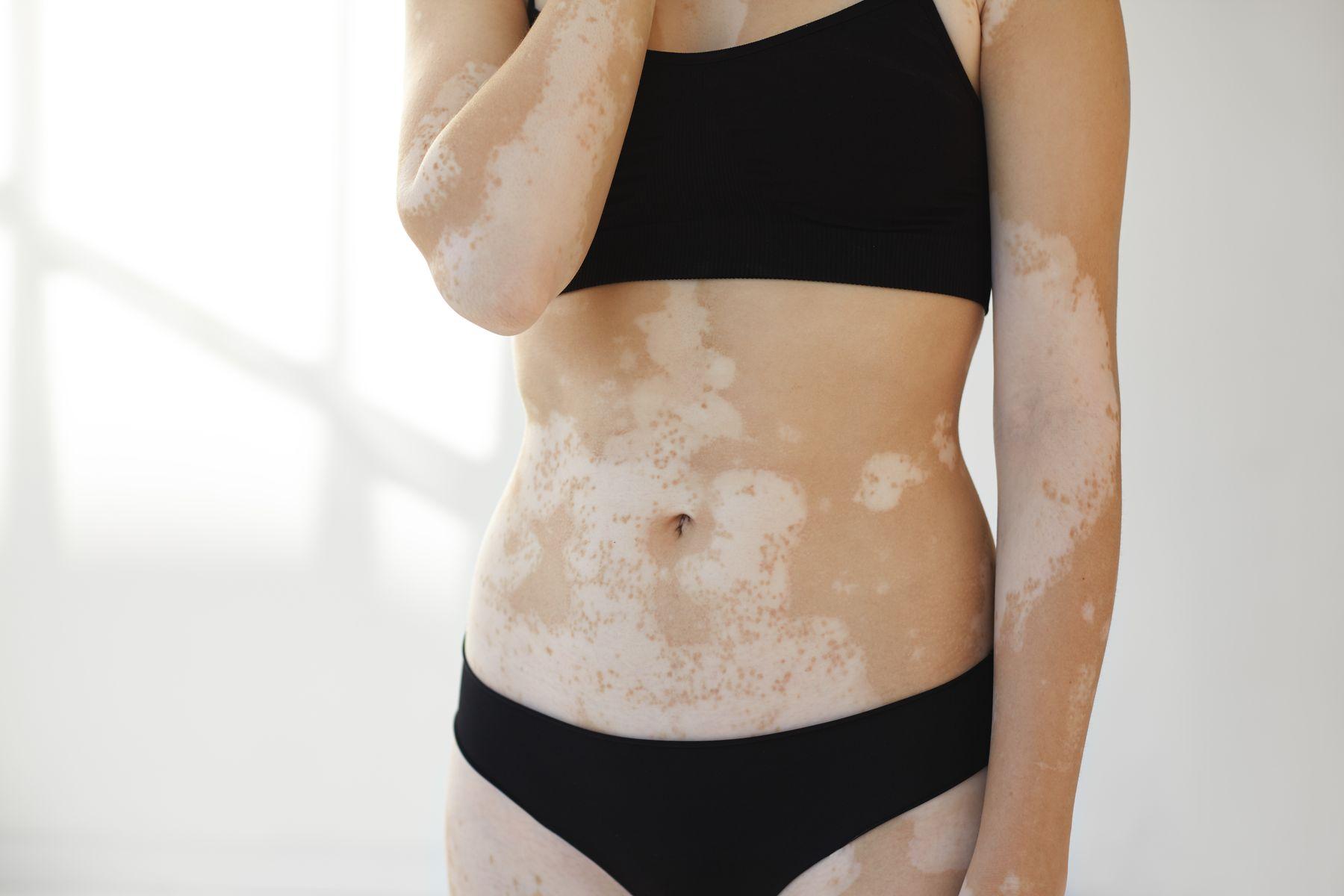 Vitiligo on a woman's body