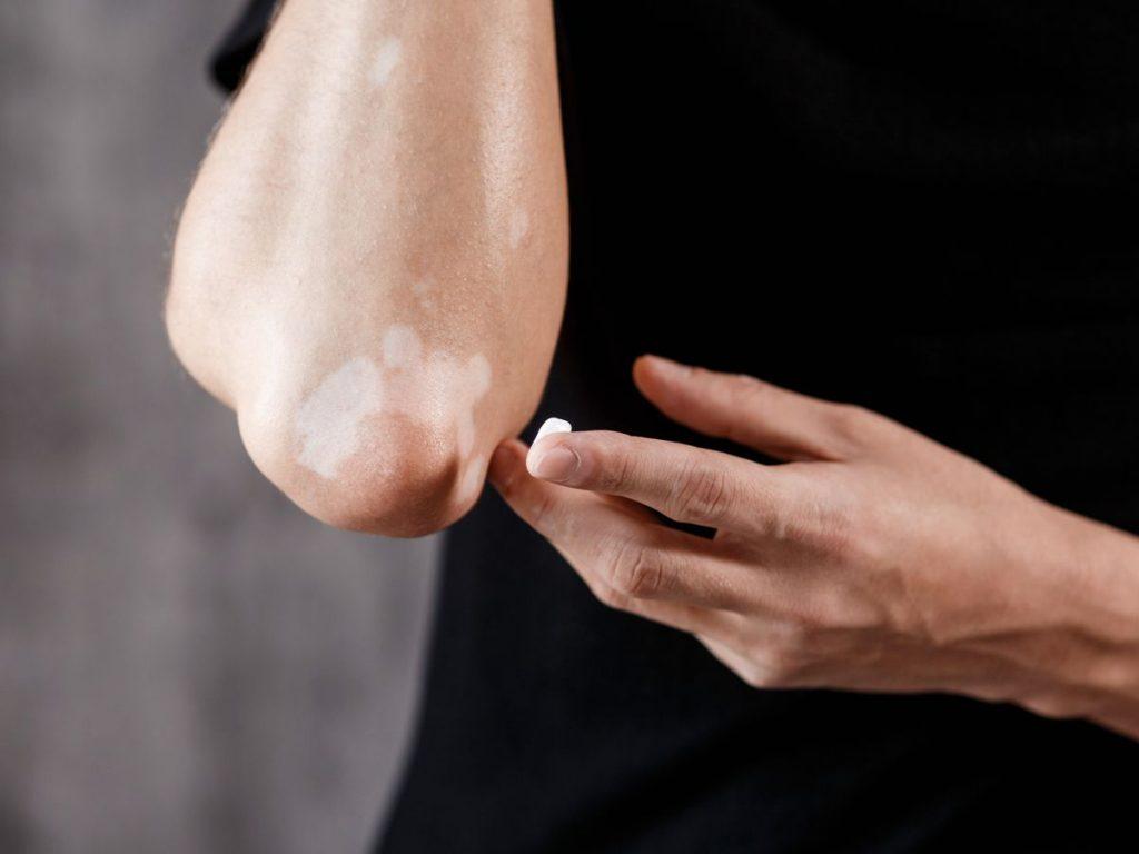 Close-up shot of vitiligo on a man's elbow