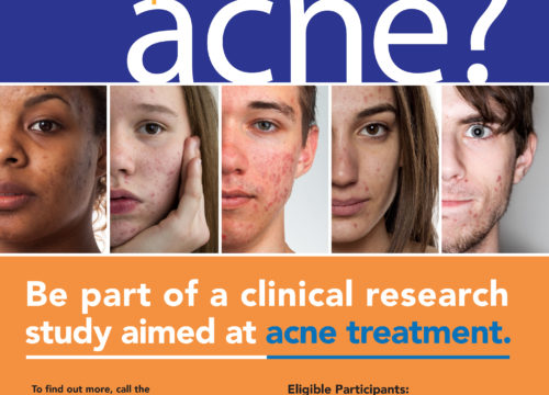 Acne Trial