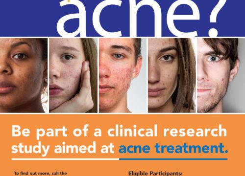 Acne Trial