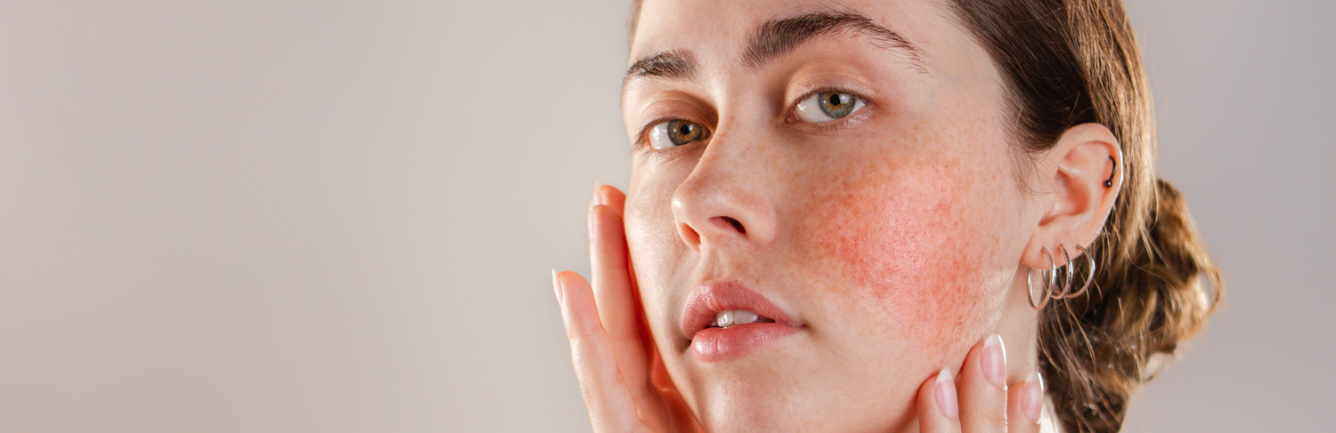 Study Shows Combination Laser and Oxymetazoline Therapy Highly Effective on Rosacea