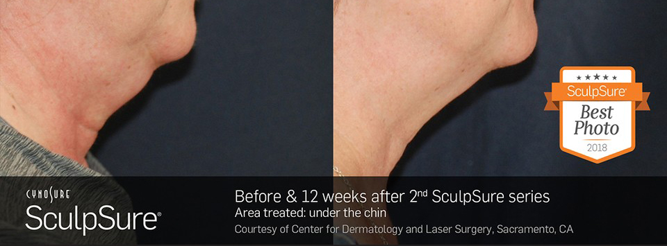 Before and after SculpSure submental results